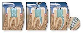 การรักษารากฟัน Endodontic Treatment